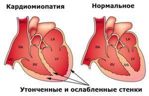 alcool kardimiopatiya
