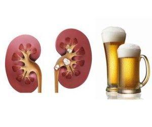 Как пиво влияет на почки?